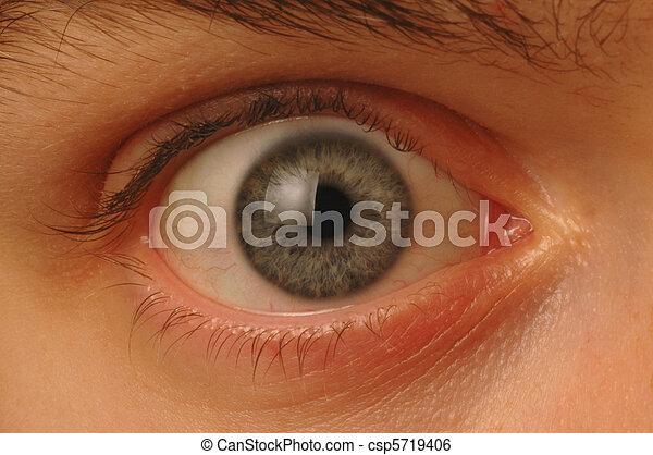 Close up of wide-eyed eyeball - csp5719406