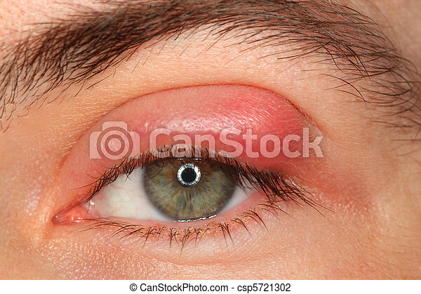 illness person eye with sty and pus looking into the camera - csp5721302