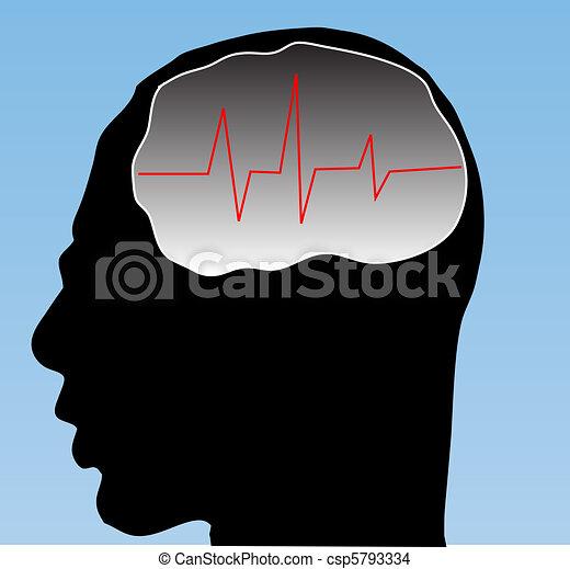 Brain  - csp5793334