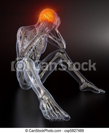 Head Pain concept - csp5827489
