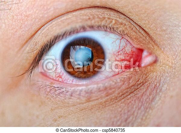Eye, macro, blood  - csp5840735