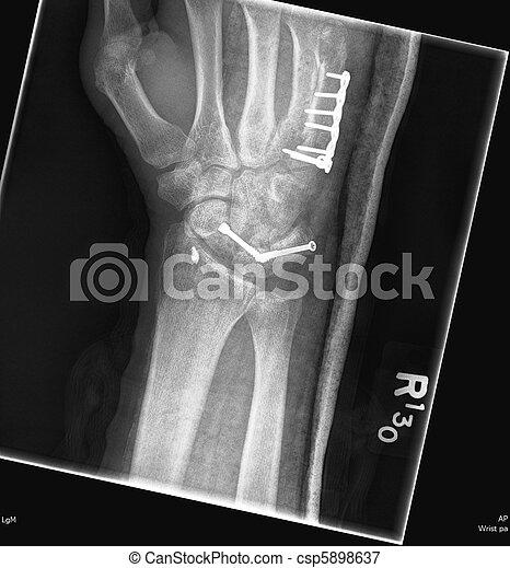 wrist xray - csp5898637