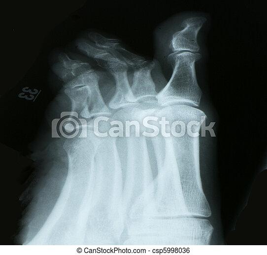 radiografía, Dedos del pie - csp5998036