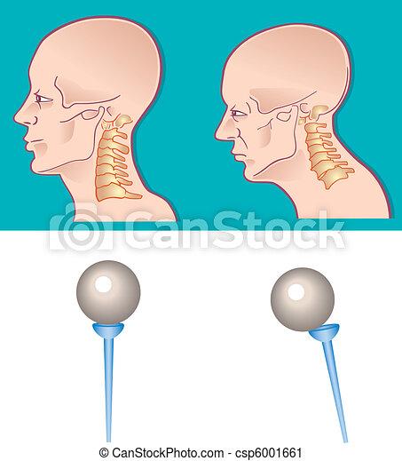 Neck spine - csp6001661