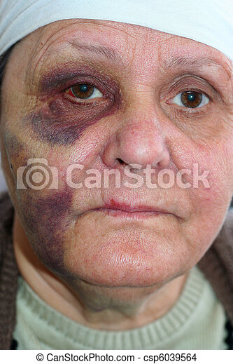 Abused old poor woman - csp6039564