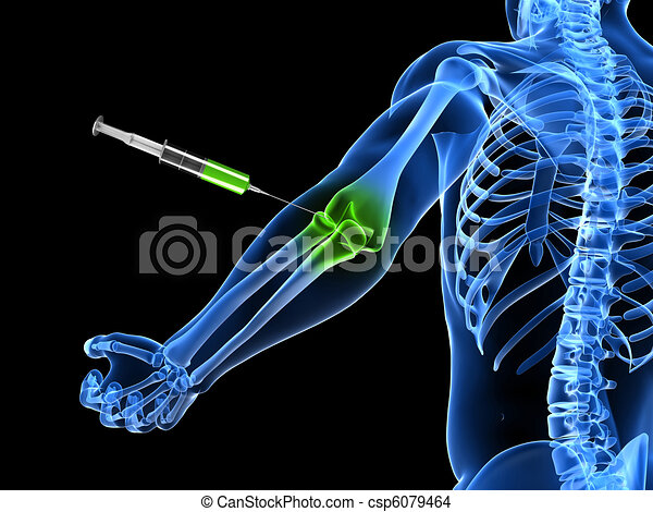 elbow joint injection  - csp6079464