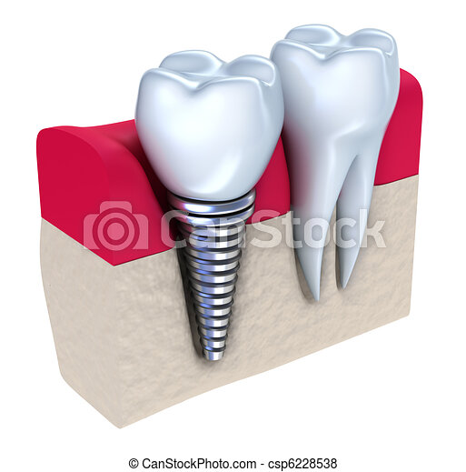 Dental implant  - csp6228538