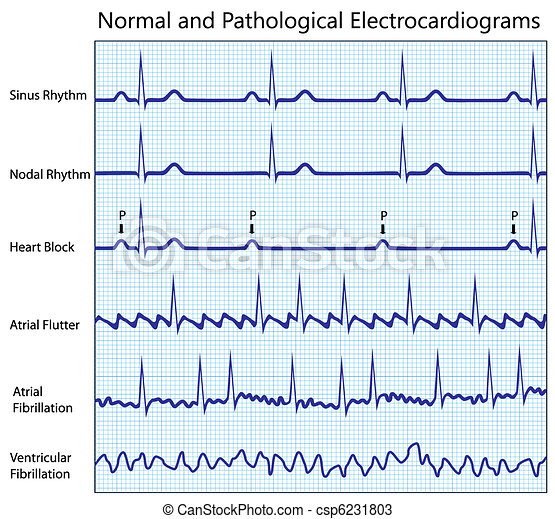 Normal and diseased ecg collection - csp6231803