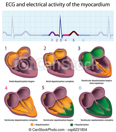 ECG explained - csp6231804