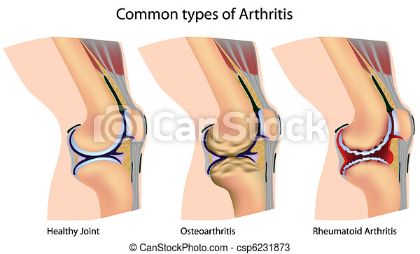 Common types of arthritis - csp6231873