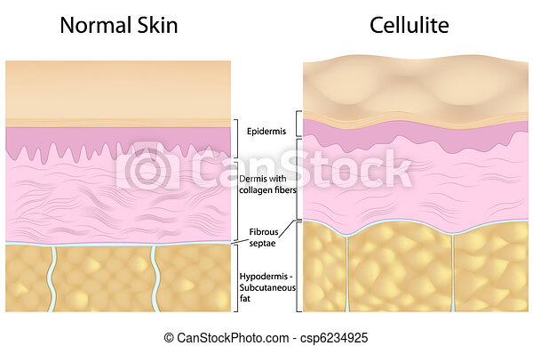 Cellulite versus smooth skin - csp6234925