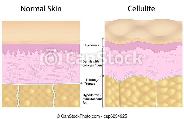 Cellulite versus smooth skin - csp6234925
