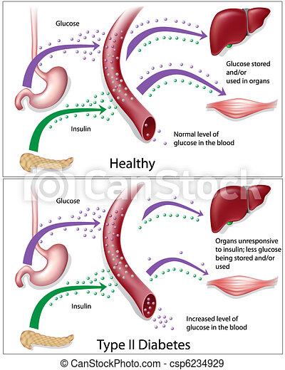 Type 2 diabetes - csp6234929