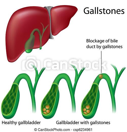 Gallstones - csp6234961