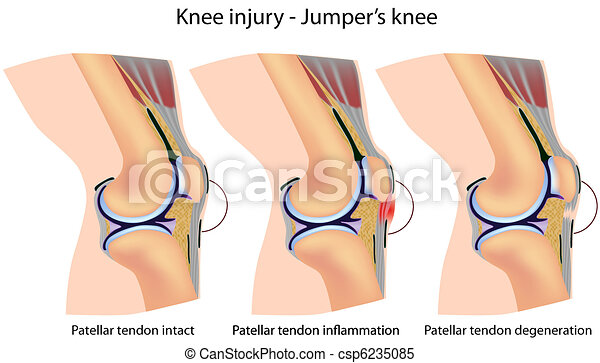Jumper's knee anatomy - csp6235085