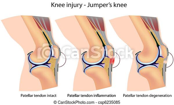 Jumper's knee anatomy - csp6235085