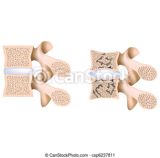 Lumbar spine osteoporosis - csp6237811