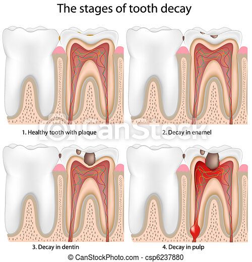 Tooth decay - csp6237880
