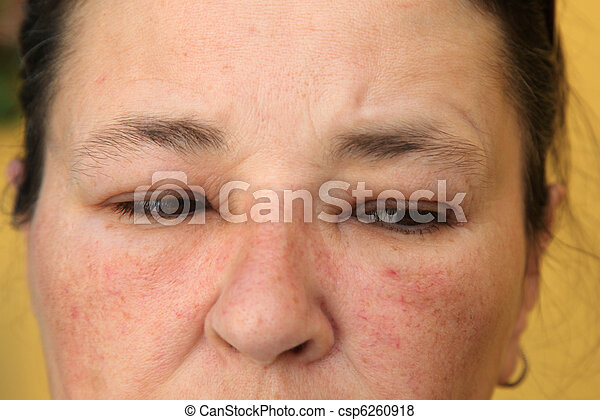 Allergy or conjunctivitis - close-up - csp6260918