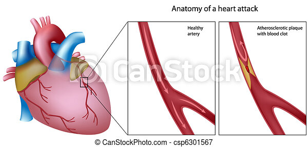 Anatomy of heart attack - csp6301567