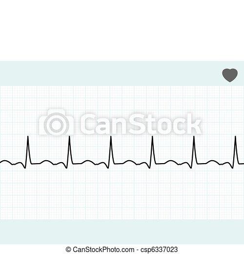 Normal electrocardiogram ECG. EPS 8 - csp6337023