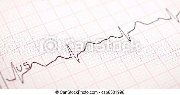 ecg graph, Electrocardiogram ekg - csp6501996
