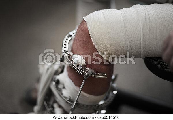 Broken leg - csp6514516