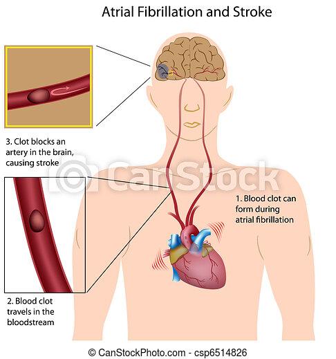 Atrial fibrillation and stroke,eps8 - csp6514826