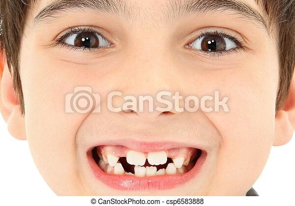 關閉, 遺失, 向上, 牙齒 - csp6583888