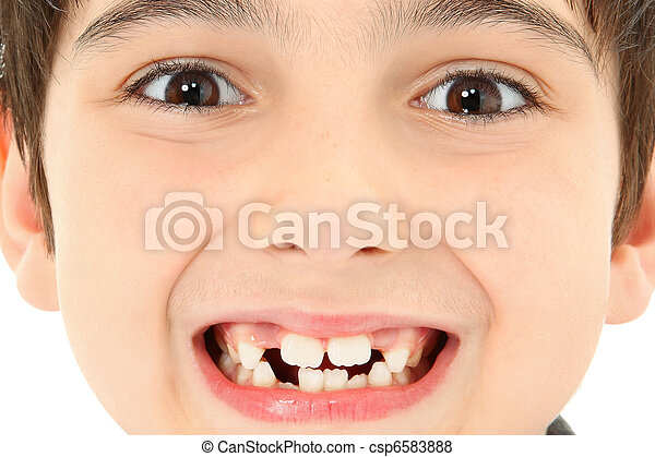 Close Up Missing Teeth - csp6583888