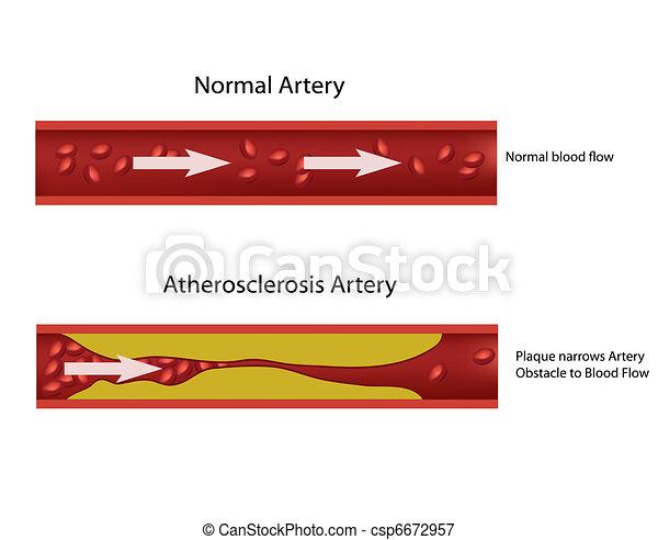 Atherosclerosis artery - csp6672957