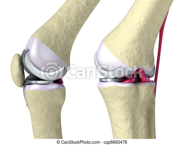 Knee and titanium hinge joint - csp6693478