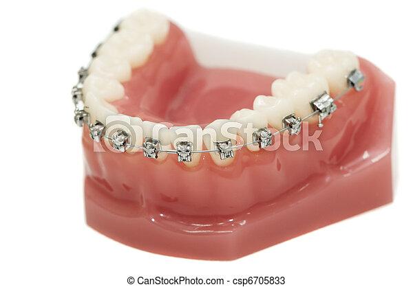 lower dental jaw bracket braces model isolated - csp6705833