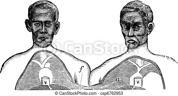 Siamese twins. V. Vena cava. f. Upper limit of the common axis, vintage engraving. - csp6762953