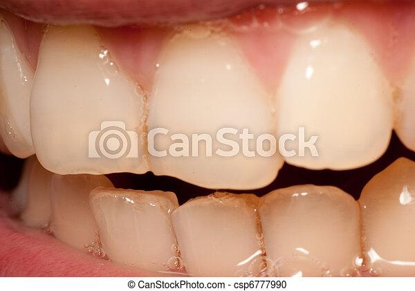 牙齒 - csp6777990