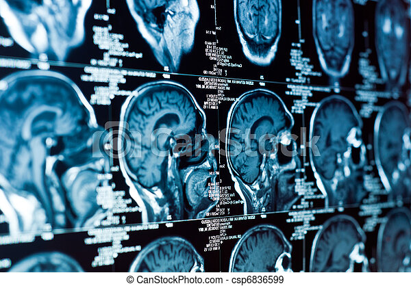 Closeup of a CT scan with brain and skull on it - csp6836599