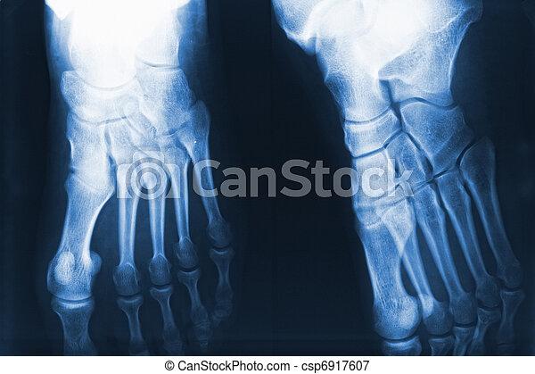 feet xray - csp6917607