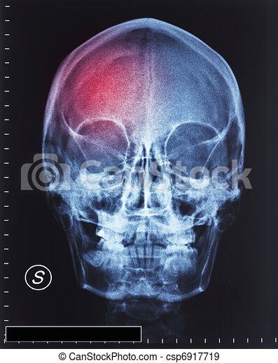 trauma - csp6917719