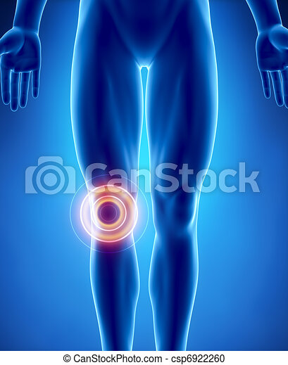 Human knee problem with highlighted area - csp6922260