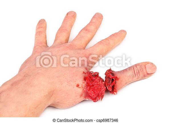 artificial human hand with cut out finger - csp6987346