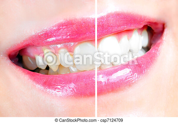 Dental Whitening - csp7124709