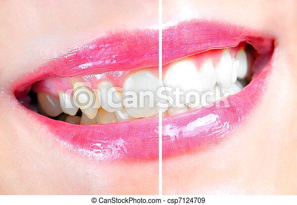 dentaire, blanchir - csp7124709