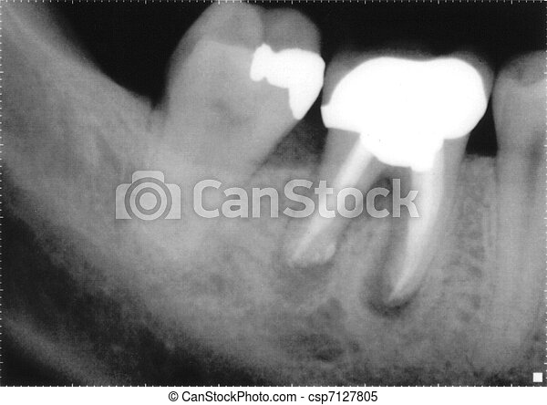 x ray of molars - csp7127805