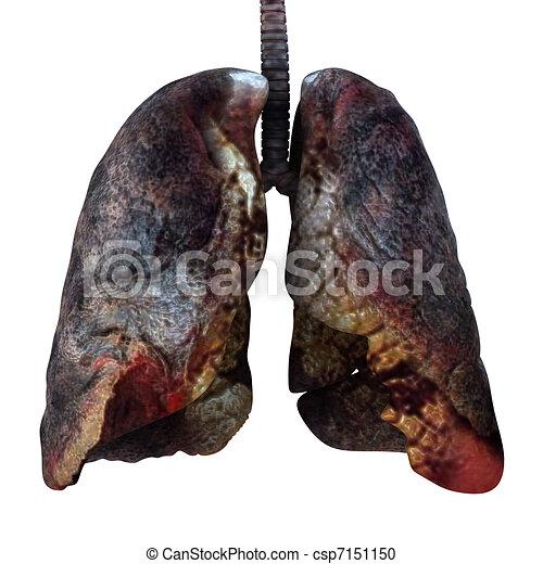 Lung Anatomy Function and Diagrams  healthlinecom