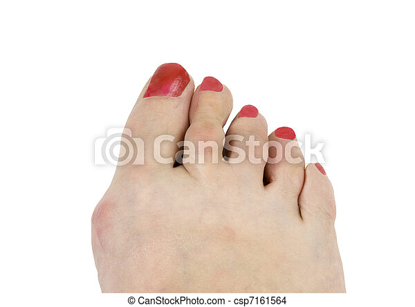 hammer toe and bunion - csp7161564