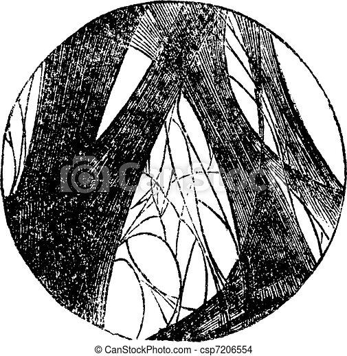 Coagulated fibrin vintage engraving - csp7206554