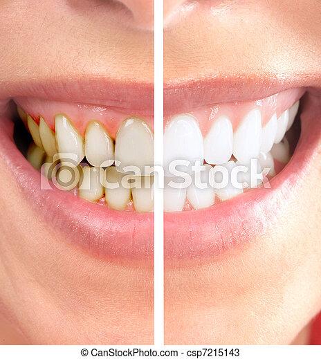 Smile. - csp7215143