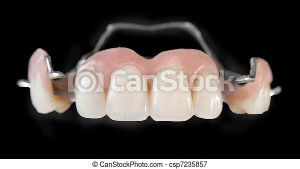 dental implants - csp7235857