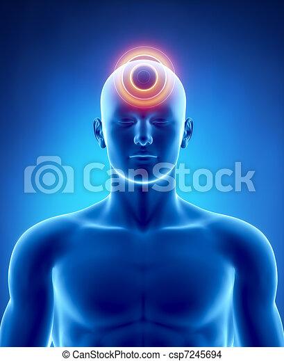 Migraine and headache concept - csp7245694