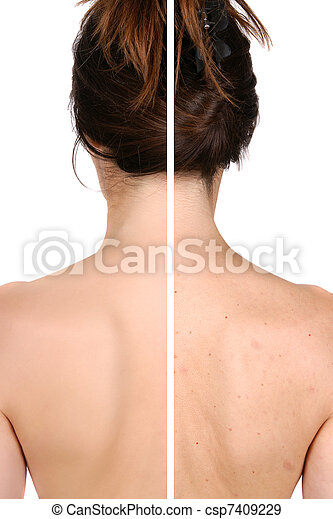 Left side: good and smooth skin after treatment - right side pimples and bad skin before treatment - csp7409229